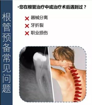镍钛根管锉在预备中的4条操作方法及临床实例