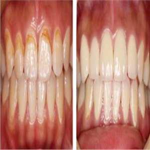 前牙二氧化锆全瓷冠修复