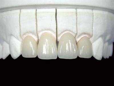 钴铬合金烤瓷牙1.jpg